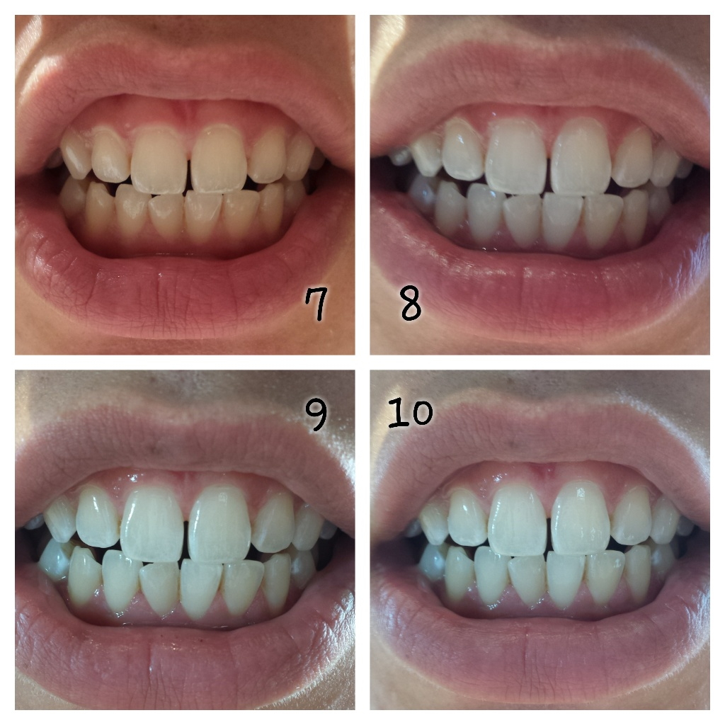 Elly Hay Teeth Whitening Opalescence Instructions